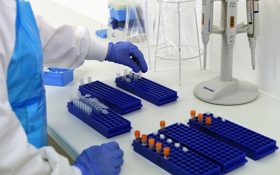 The science Behind IgE Testing